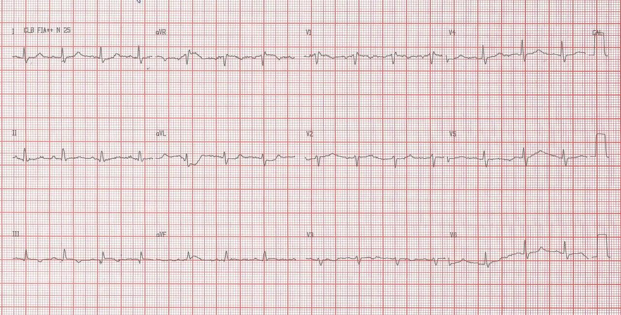 Paciente de 72 años que refiere disnea súbita y dolor precordial con hallazgo de signo de S1Q3T3 en el ECG y amputación de ambas arterias pulmonares en Rx por TEP bilateral e infarto pulmonar