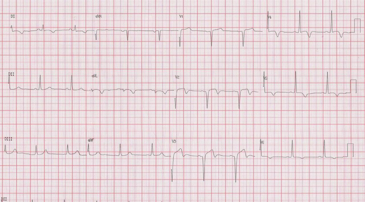 Hombre de 64 años con múltiples factores de riesgo que presenta angor prolongado de reposo por presentar suboclusión de la DA, con onda T bifásica en V2 V3 indicativa de reperfusión incompleta con peligro inminente de IAM
