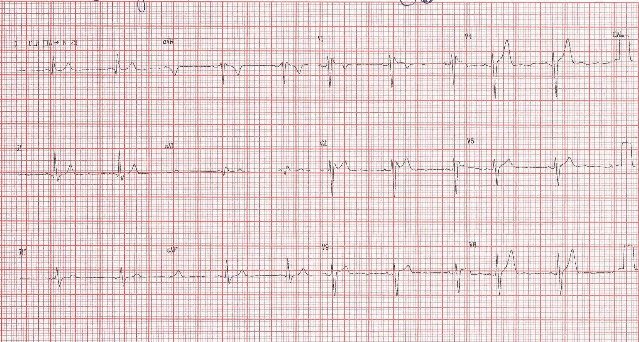 Paciente masculino de 36 años con palpitaciones y síncope que tiene antecedentes de MS familiar que presenta patrón ECG de Brugada + WPW intermitente