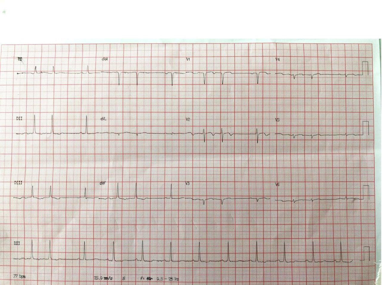 Mujer de 77 años, hipertensa y diabética que manifiesta disnea paroxística nocturna como único síntoma y que presenta una suboclusión en la DA