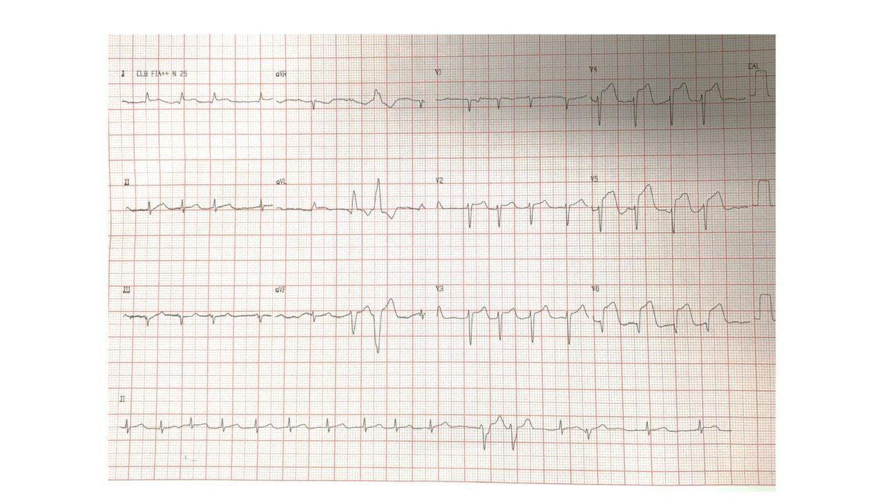 Hombre de 85 años con dolor precordial opresivo y sudoración intensa por SCA por compromiso de DA medio distal