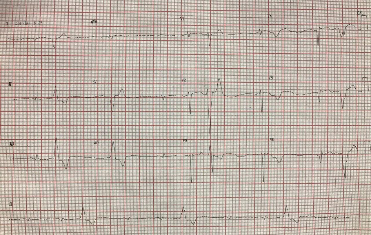 Paciente masculino de 65 años, alcoholista, con historia de angor, disnea y edemas de MMII,  que presenta palpitaciones por presencia de miocardiopatía dilatada y lesión de Cx