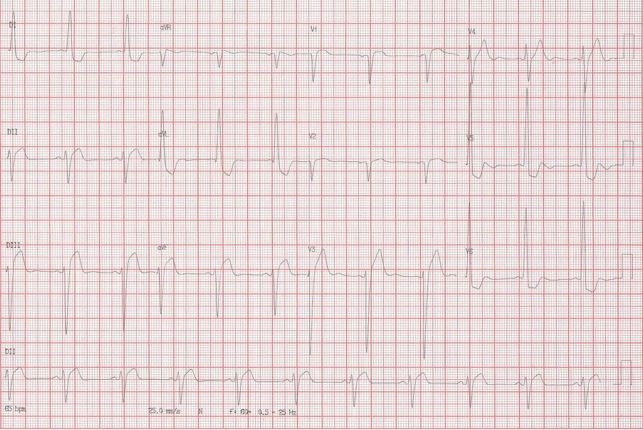 Paciente tratado crónicamente con digoxina que ingresa con EAP, náuseas y vómitos, que presenta esclerosis aórtica e HVI con signos electrocardiográficos de intoxicación digitálica