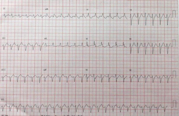 Paciente masculino de 57 años con antecedente de cirugía de revascularización un año antes que presenta hipoquinesoa ánteroseptal con queja de palpitaciones por presencia de taquicardia ventricular fascicular