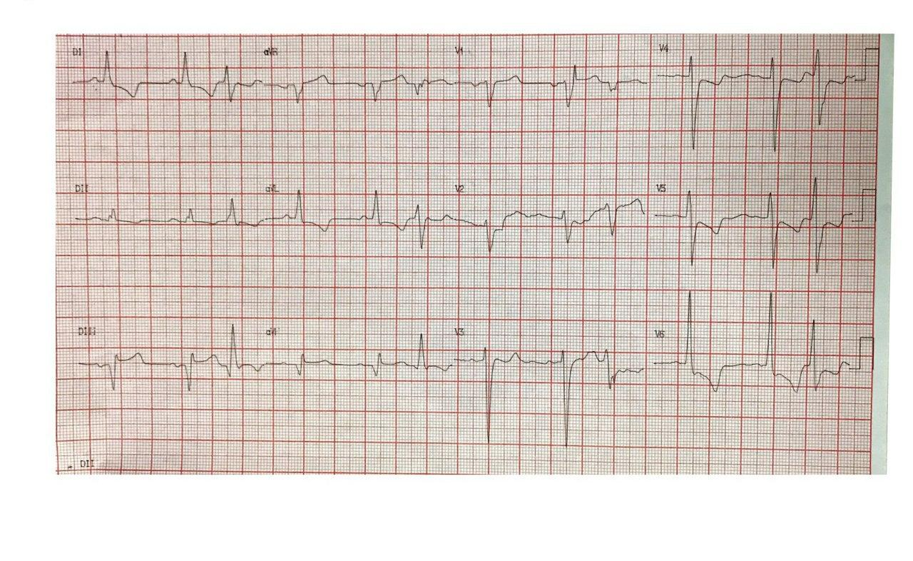 Paciente de 56 años portador de estenosis aórtica con angor y disnea progresivos que presenta disección en arteria CD