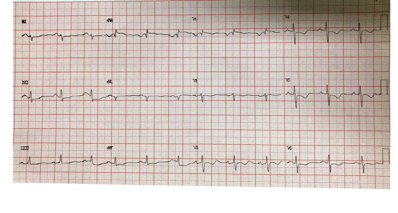 Mujer de 51 años portadora de estenosis mitral reumática con disnea y precordialgia que presenta hipertensión pulmonar severa