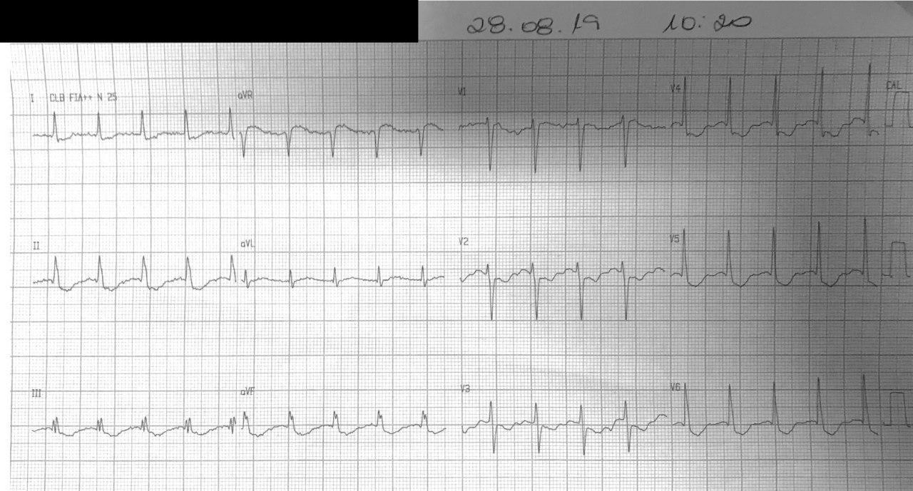 Mujer hipertensa, diabética y dislipémica que presenta dolor precordial en quién se constata arterias coronarias angiográficamente normales y severa kipopotasemia