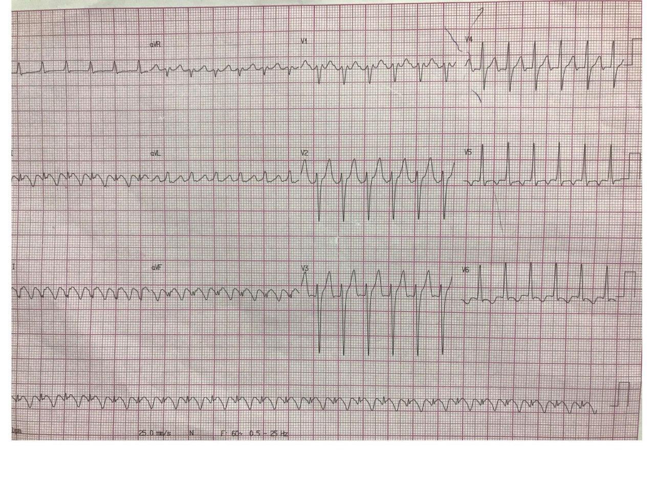 Hombre de 51 años que presenta angor, palpitaciones y disnea constatándose AA 2:1 que se controla con amiodarona y que presenta lesión en arteria Cx