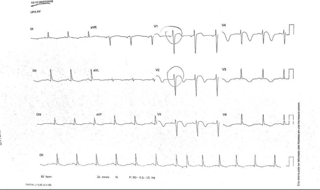 Paciente hipertenso y diabético con antecedente de ACV que presenta epigastralgia, náuseas y vómitos con CCG normal por síndrome de Tako Tsubo