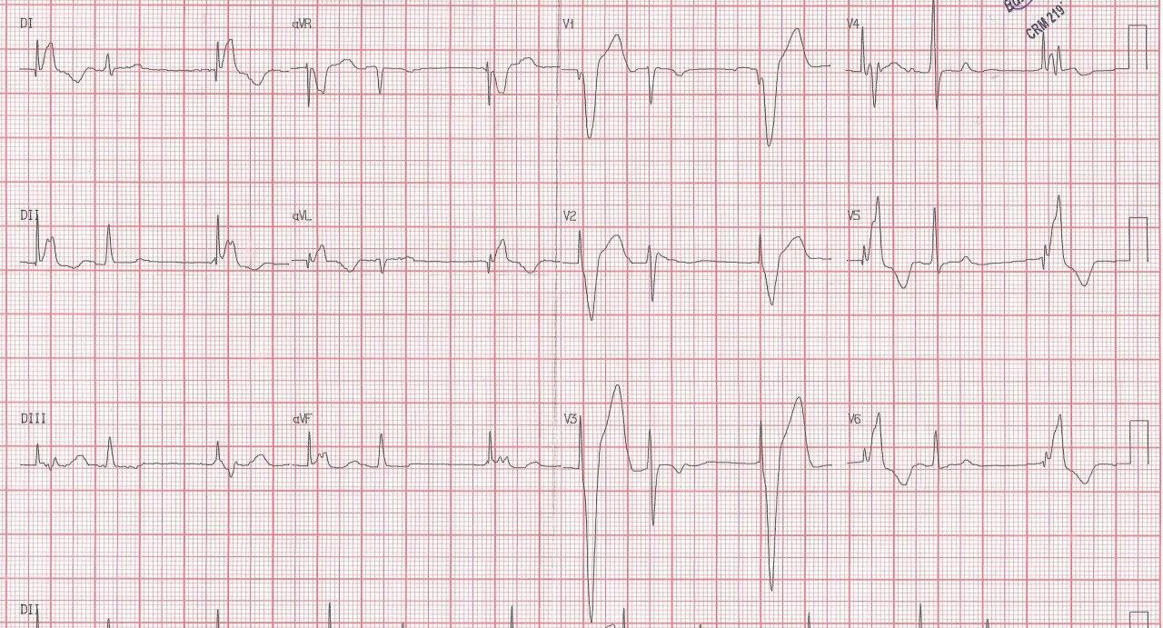 Hombre de 81 años portador de MP con supuesto antecedente de imfarto que en realidad corresponde a un síndrome de Brugada