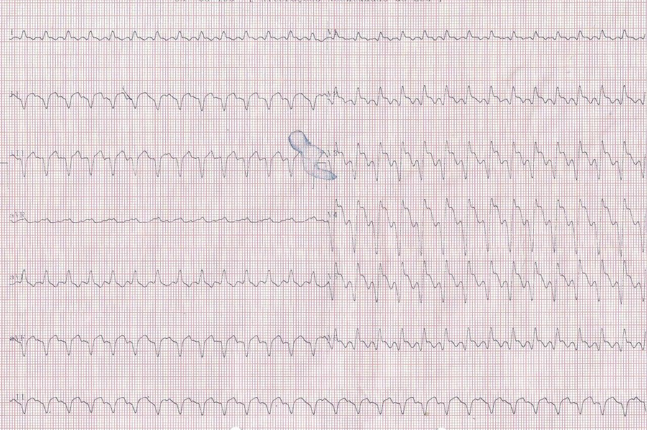 Paciente de 67 años que presenta TV, 4 días despues de implante de stent por SCACEST