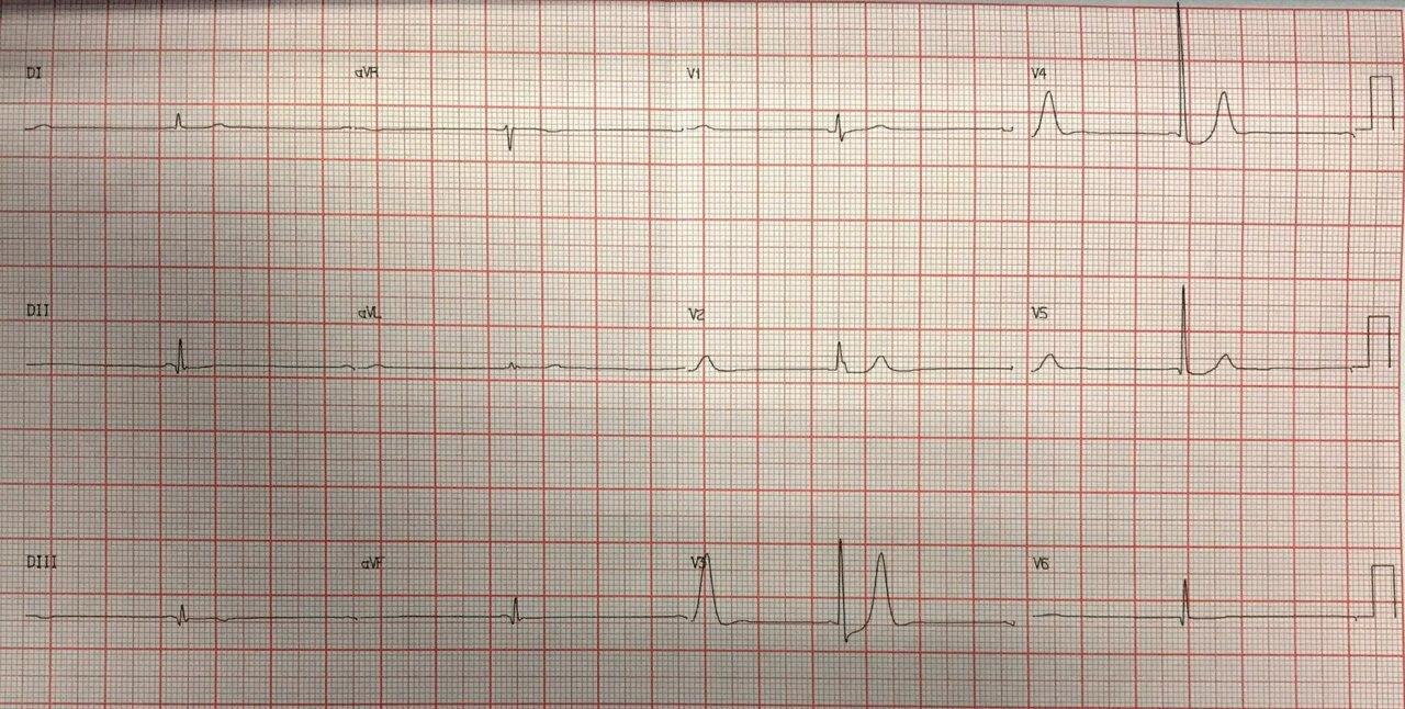 Paciente de 65 años con angor prolongado que presenta patrón de Winter electrocardiográfico en este caso por compromiso de arteria Cx