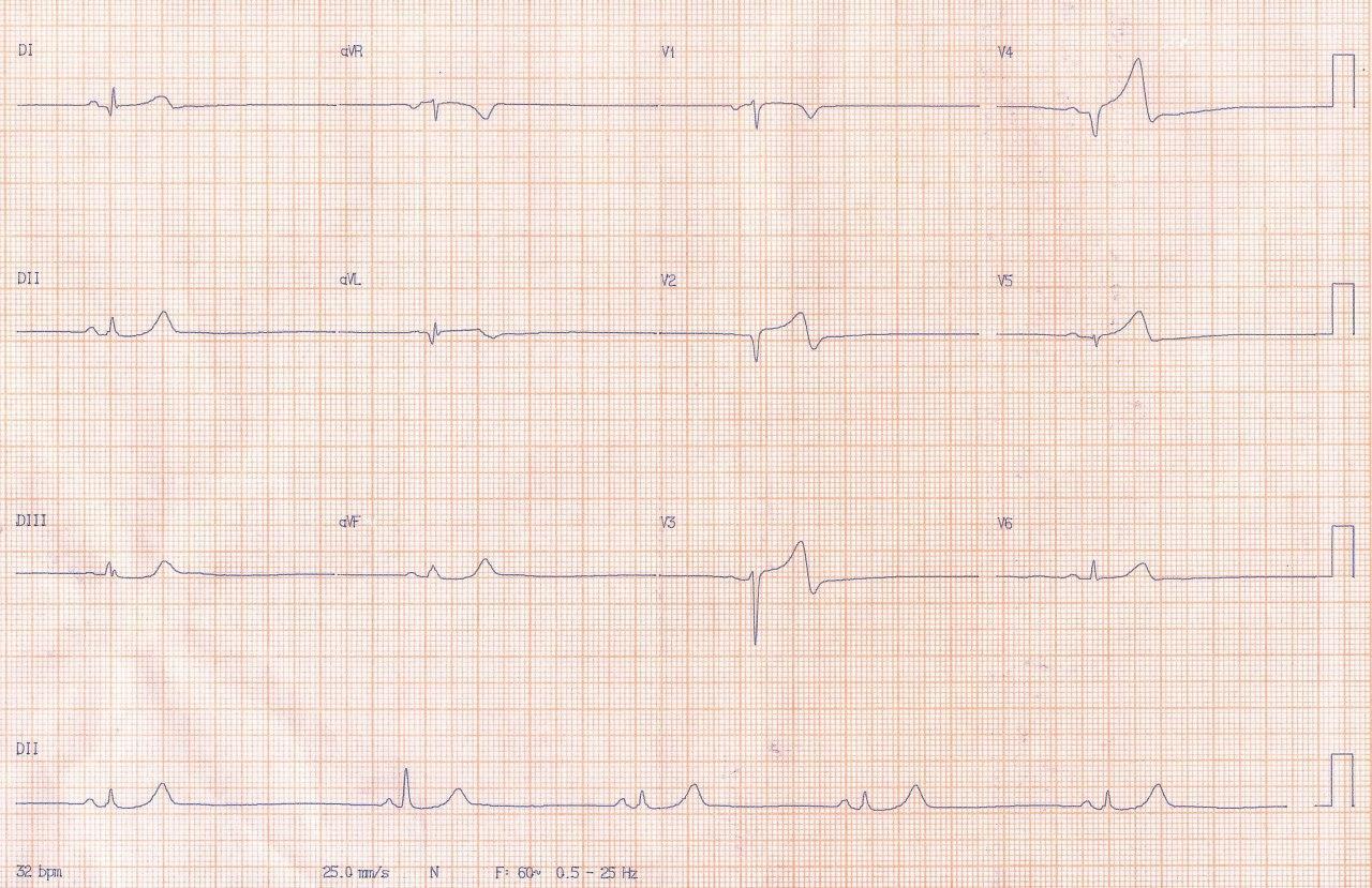 ECG correspondiente a paciente tratado con beta bloqueantes con cuadro de angor de reciente comienzo y episodio de angor de reposo actual que presenta subocluisón con trombo en Cx