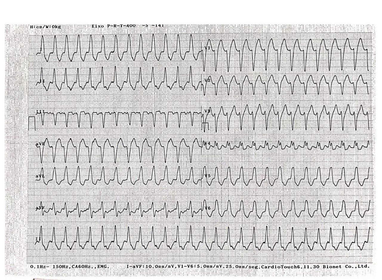 Paciente de 77 años, HTA, en diálisis crónica que presenta angor y disnea cuyo ECG muestra una taquicardia auricular con aberrancia