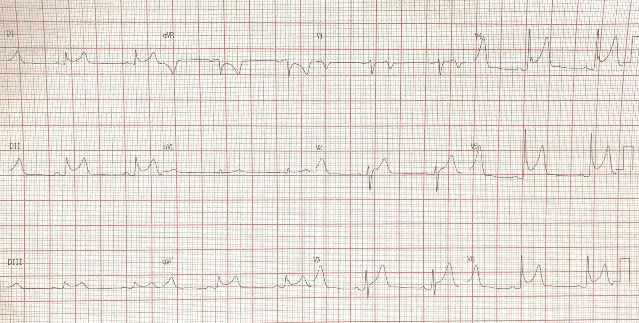 Hombre de 53 años con precordialgia atípica y troponina negativa que presenta imagen ECG de infradesnivel de PR con depresiónl ST en aVR correspondiente a repolarización precoz con elevación del segmento ST (ERSTE)