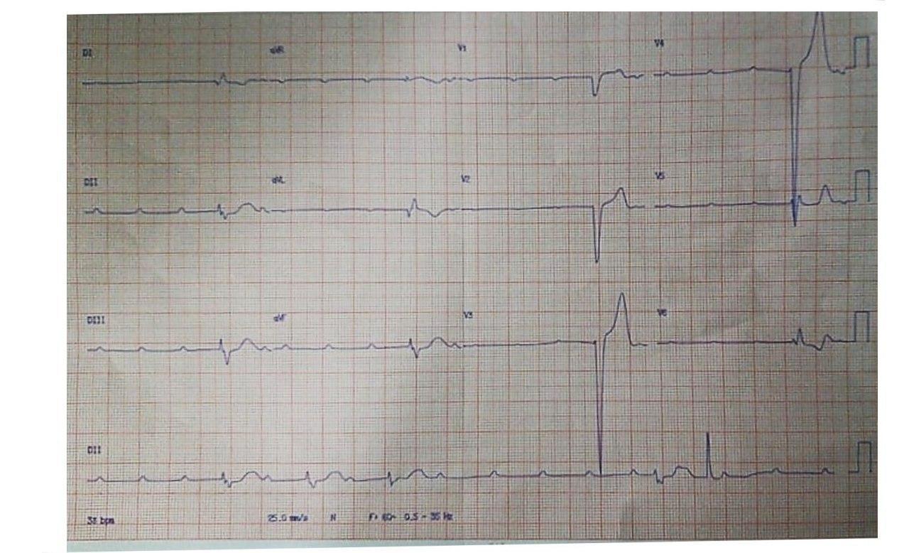 Varón de 18 años que presenta síncope y convulsiones con antecedente cercano de episodio febril y tos cuyo ECG muestra BAVC que se resuelve espontáneamente y leve aumento de troponina en contexto de miocarditis aguda