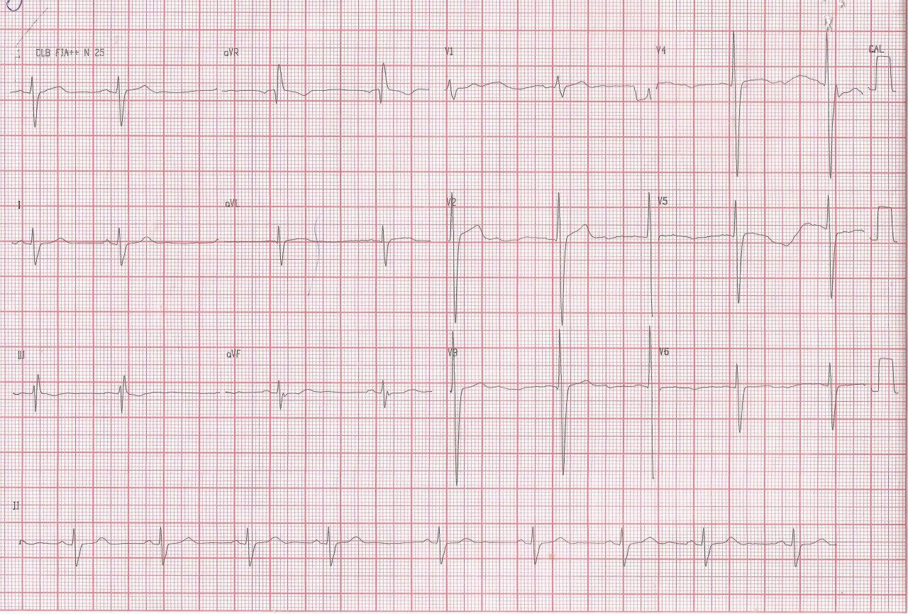 Paciente masculino hipertenso de 43 años que presenta angor y disnea de reciente comienzo con antecedente familiar de hermana de 47 años con MS que presenta miocardiopatía hipertrófica asimétrica obstructiva