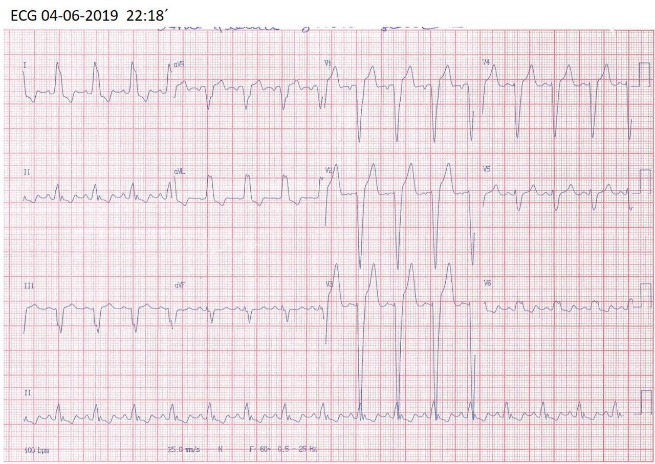 Mujer de 20 años portadora de miocardiopatía dilatada de etiología desconocida que cursa con disnea progresiva y fiebre por infección pulmonar sobreagregada mostrando ondas T negativas por memoria cardíaca post BCRI en fase 3