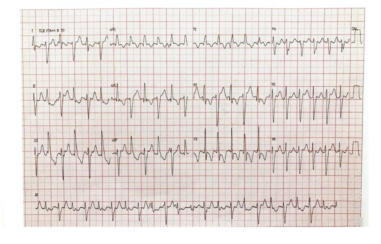 Niña de 15 años, autista con deterioro cognitivo que presenta episodios sincopales en quién se constata taquicardia ventricular bidireccional y miocardio no compactado