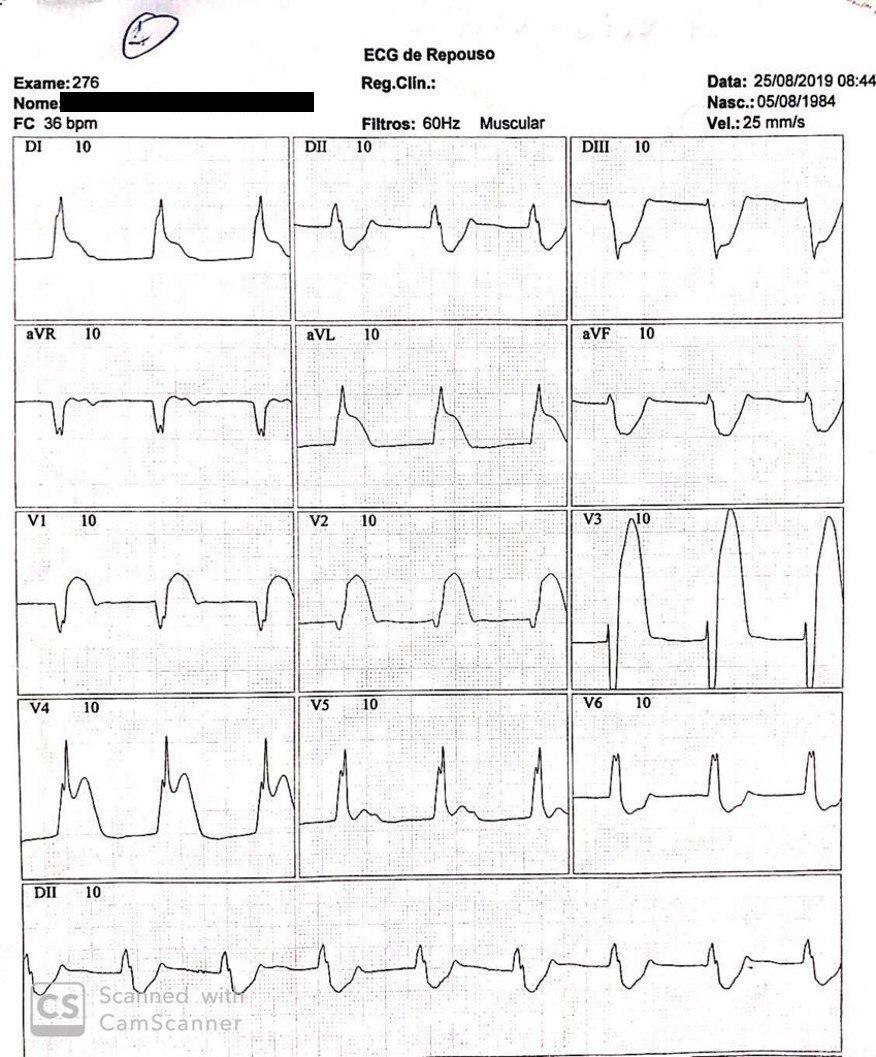 ECGs con y sin angor de paciente de 46 años con espasmo coronario en presencia de síndrome de repolarización precoz