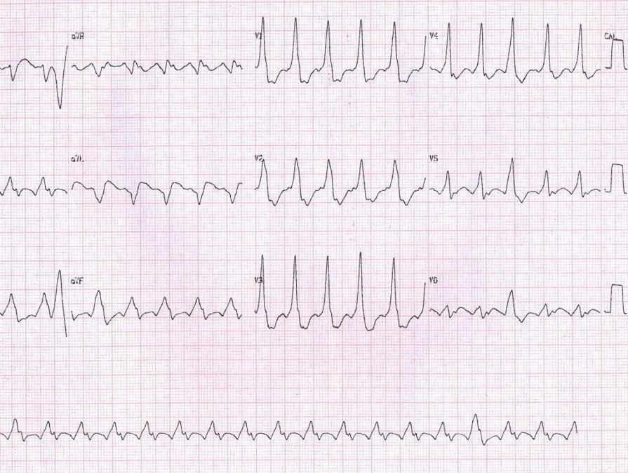 Paciente masculino de 37 años con palpitaciones por presencia de AA 2:1 que pasa a conducción 1:1 en contexto de WPW por vía anómala lateral izquierda