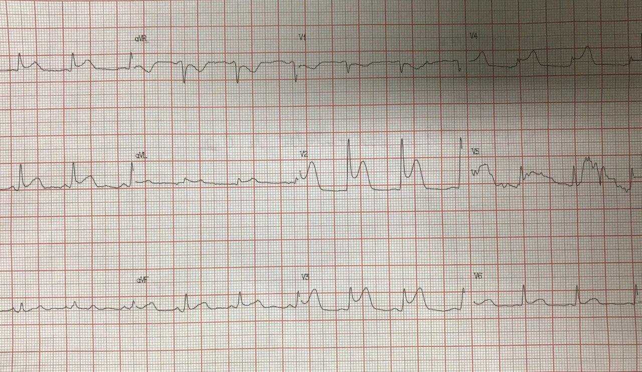 Hombre de 54 años con angor prolongado debido a SCA por compromiso de tercio medio de la arteria DA la cuál es angioplastiada