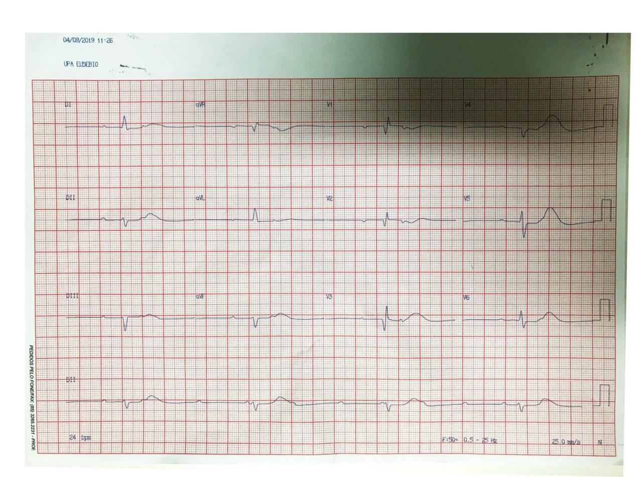 Paciente de 71 años, hipertenso que presenta episodios sincopales por presencia de BAV de alto grado generado en estenosis aórtica calcificada que determina Enfermedad de Lev