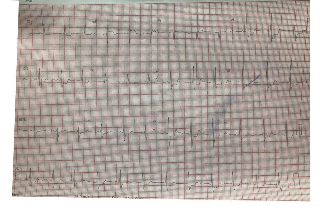 Paciente masculino de 61 años que presenta episodio de angor en el que se constata lesión de TCI