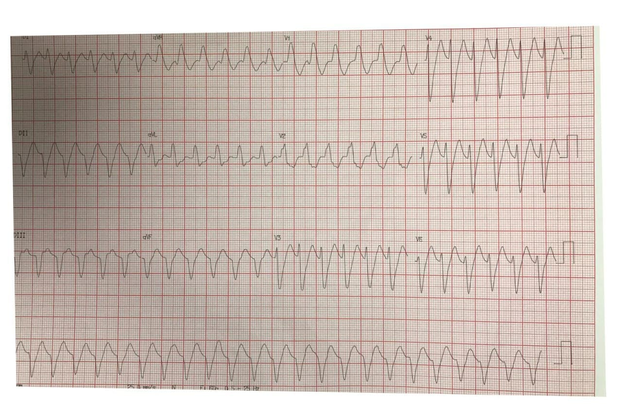 Hombre de 62 años hipertenso con palpitaciones por presencia de TV de etiología no aclarada