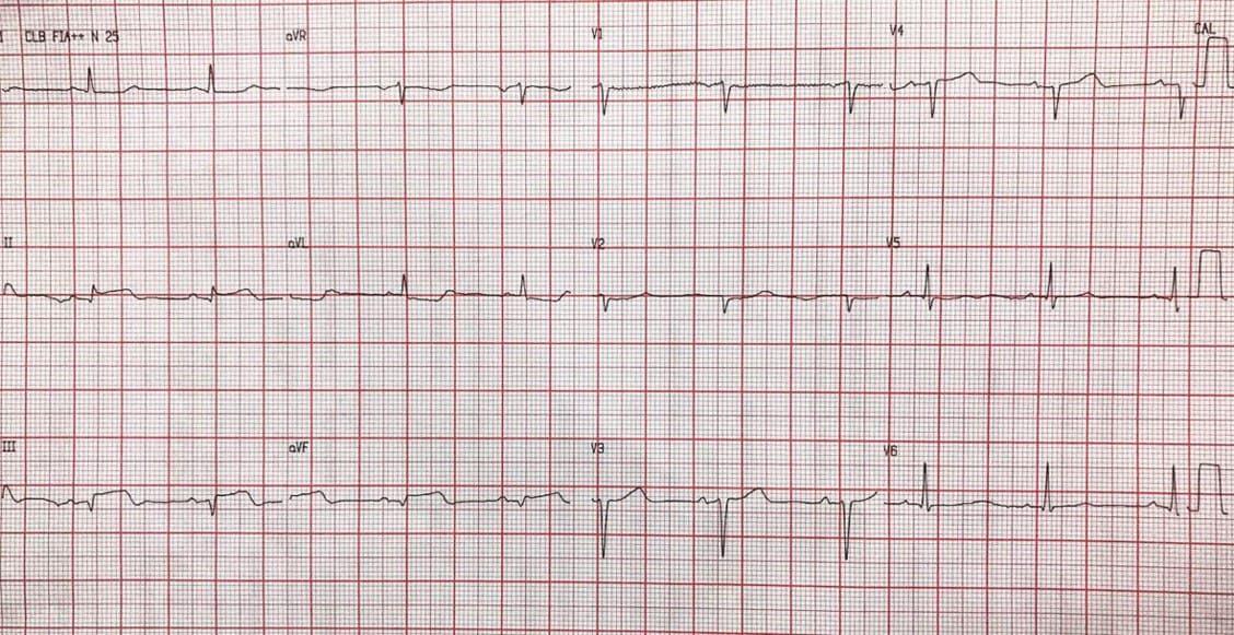 Paciente masculino de 70 años con factores de riesgo que presenta episodio de angor prolongado con onda T plus minus en cara inferior, expresión de trombo activo que ocluye totalmente la CD en su origen