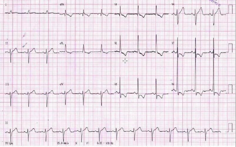 Paciente hipertenso y diabético con episodio de angor durante el cual se observa presencia de HbAI y fuerzas anteriores prominentes, imágenes que desaparecen al cabo de 15 minutos cuando alivia el dolor lo que establece la sospecha de espasmo de CD que se halla ocluída en un 40%
