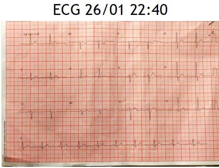 Paciente masculino de 54 años, hipertenso que presenta episodio de angor mientras jugaba fútbol debido a lesión con trombo de la DA