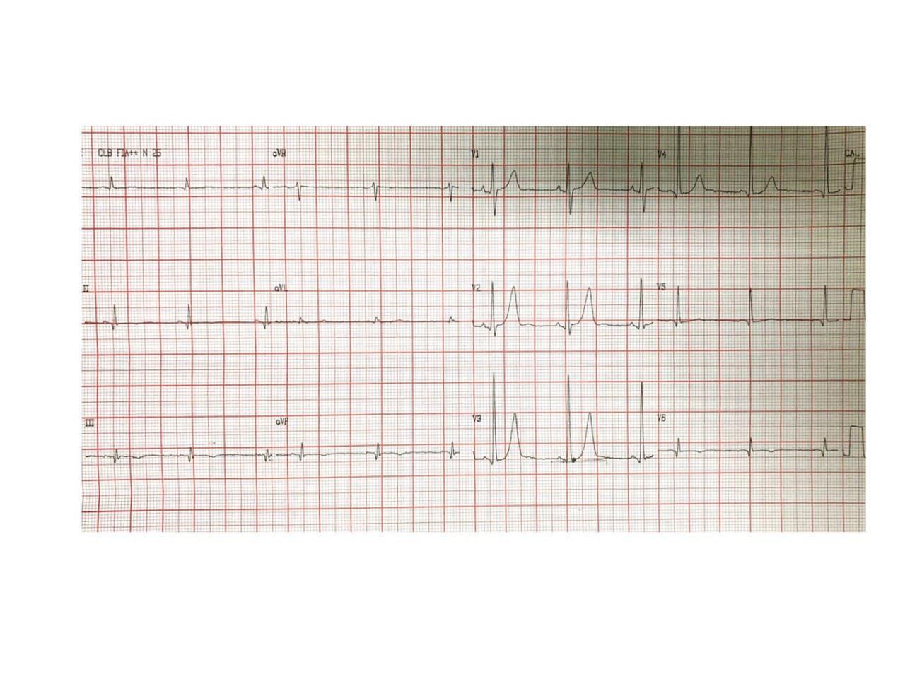 Paciente masculino de 58 años con antecedente de haber cursado un mes antes un IAM ínferolateral por compromiso de la Cx