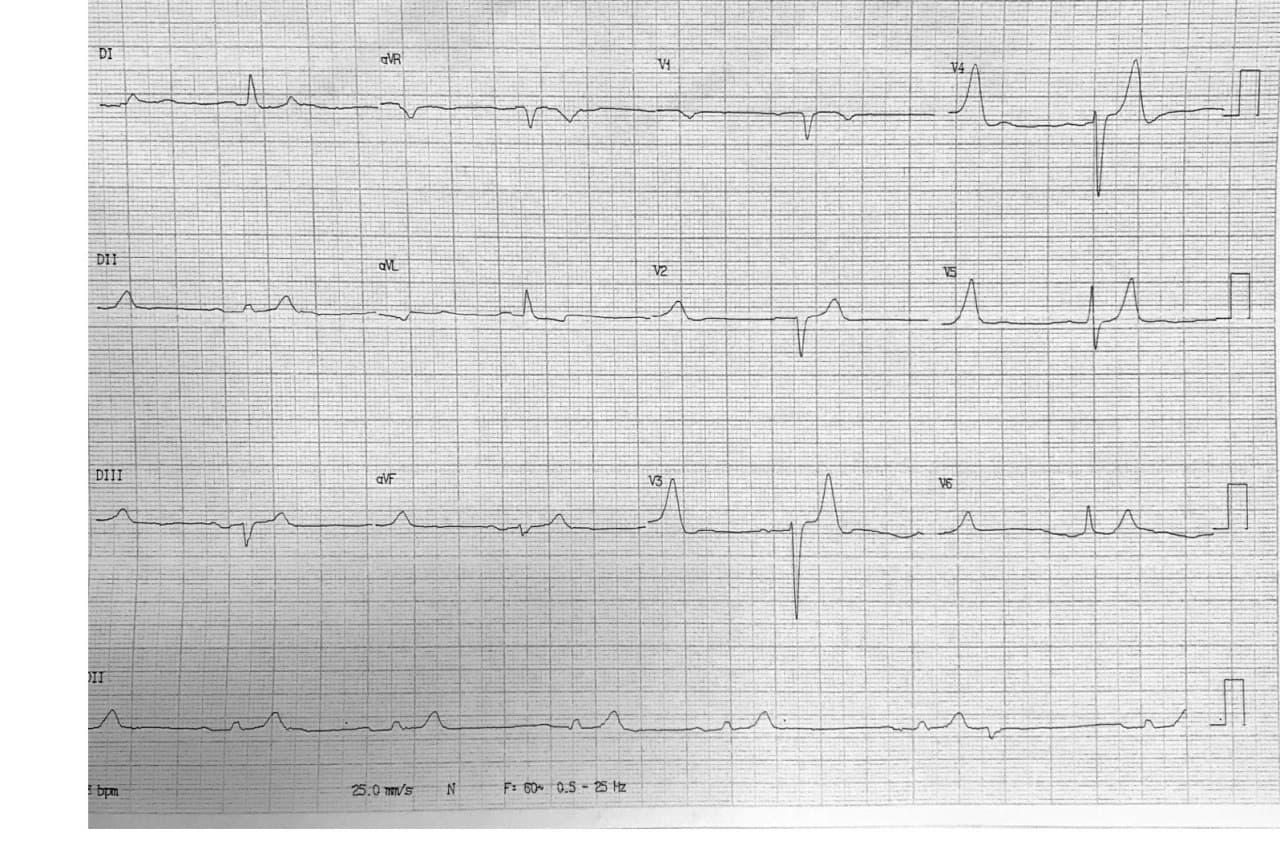 Paciente masculino de 86 años que refiere malestar general, edemas en MMII, mareos e hipotensión que presenta urea y creatinina elevadas e hiperpotasemia severa