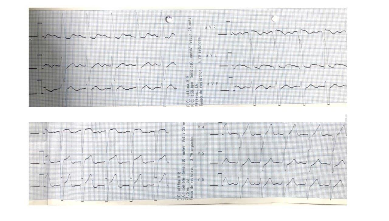 Paciente masculino de 47 años derivado de otro Hospital post reversión de taquicardia de QRS ancho cuyo ECG presenta  BIA-A (activación  caudo-cefálica de AI), HbAI tipo IV Rosenbaum  (SIII> 15 mm) asociado a HVI.