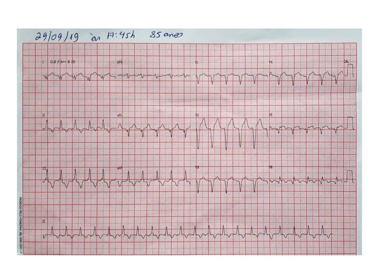 Hombre de 85 años con antecedentes de enfermedad coronaria no revascularizable que presenta angor post prandial y sensación de desvanecimiento debido a presencia de TV originada en cercanías del séptun IV