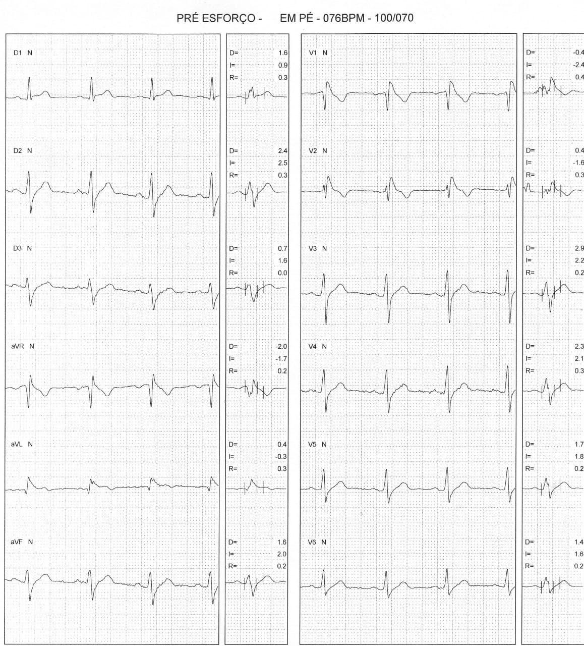 Paciente masculino de 32 años, asintomático, con antecedente de hermano fallecido súbitamente que presenta ECG con patrón de Brugada tipo I que aumenta en el postesfuerzo asociado a patrón de repolarización precoz ínferolateral