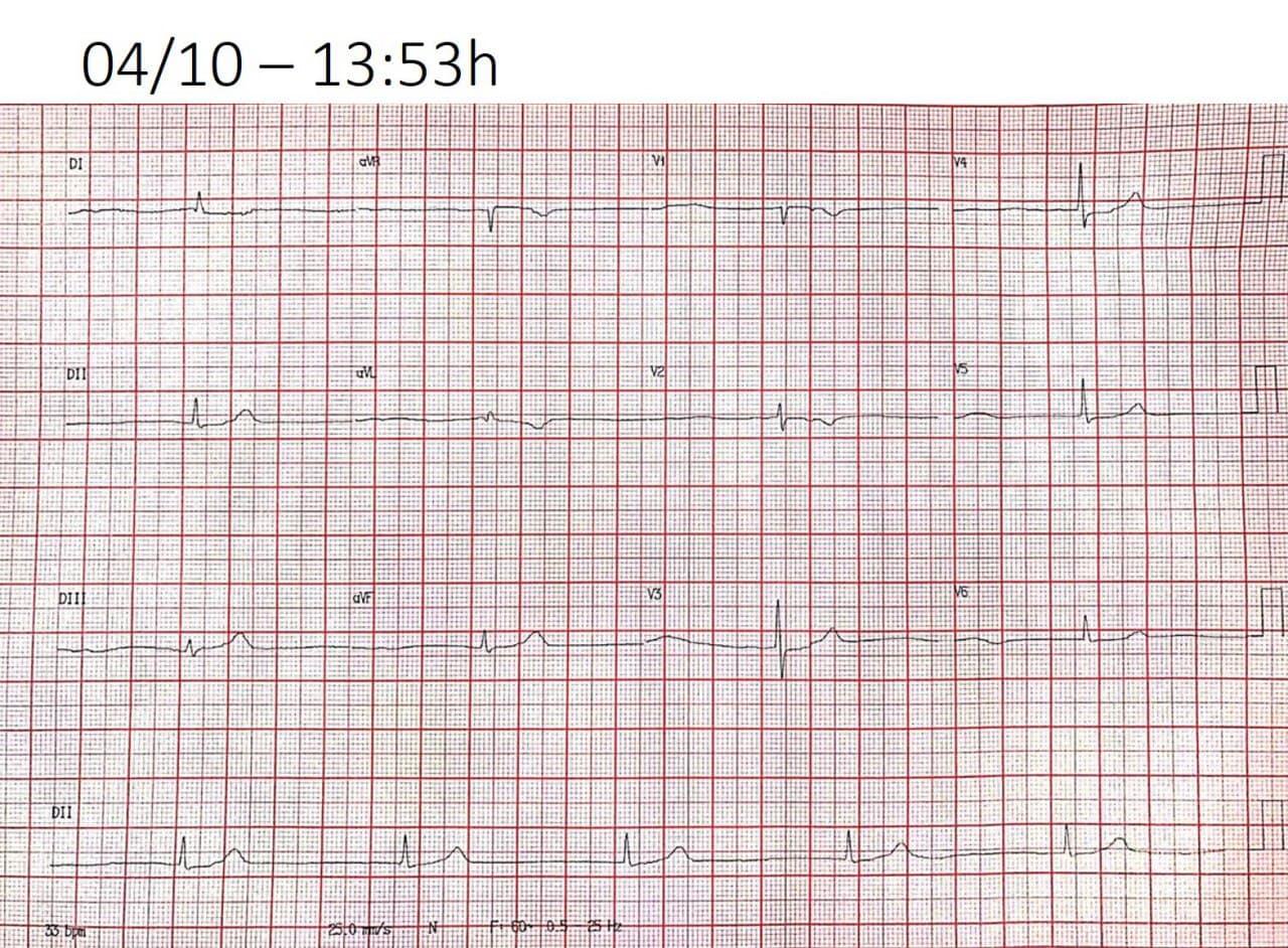 Paciente de 90 años que presenta síncope miccional por bloqueo sinoauricular de tercer grado con un ritmo de la unión AV a una cadencia más lenta