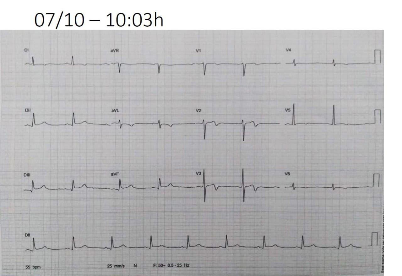 Hombre de 43 años con episodio de angor prolongado que determina imagen ECG de pseudo síndrome de Wellens por oclusión total de la tercera rama marginal de la circunflejo 100% ostial