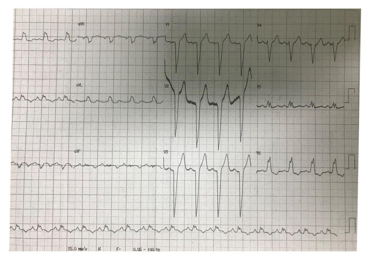 Hombre de 63 años con múltiples factores de riesgo que presenta angina inestable, con BCRI y hallago de lesión distal del TCI del 90%. 80% del ramo marginal de la CD, 90% de la DA proximal y 70% de la CX