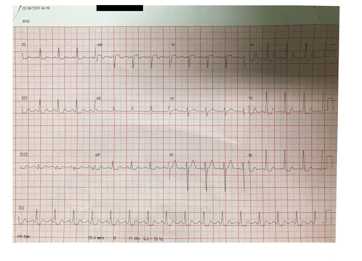 Mujer de 74 años, hipertensa tratada irregularmente, con angina de reciente comienzo y episodio actual de reposo, por enfermedad de tres vasos severa