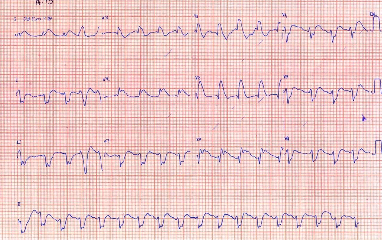 Paciente con episodio de angor que desarrolla FV luego del aumento de voltaje de la onda J por oclusión de la DA que recibe implante de stent