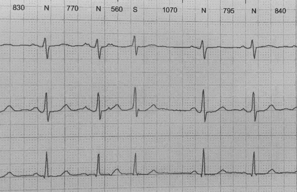 Paciente portador de doble vía nodal rápido – lenta que desarrolla una taquicardia reentrante nodal en la que las ondas P se inscriben al final del complejo QRS