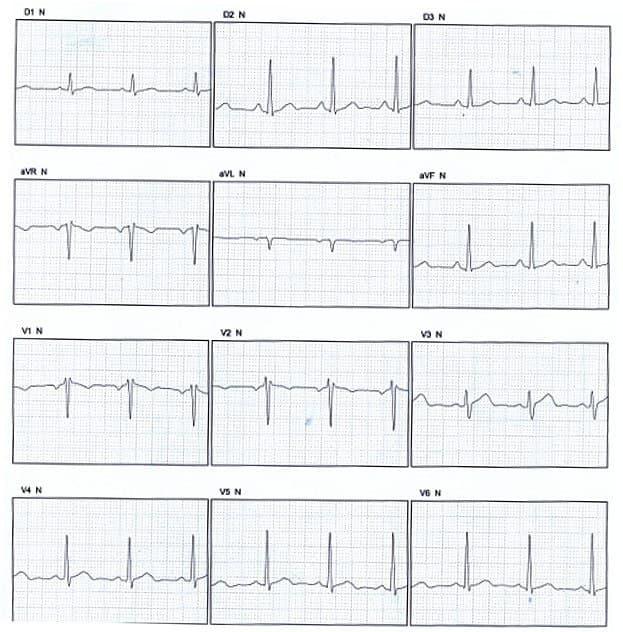 Paciente de 51 años portador de pectum excavatum que determina patrón rsr «trifásico» y onda P completamente negativa en  V1