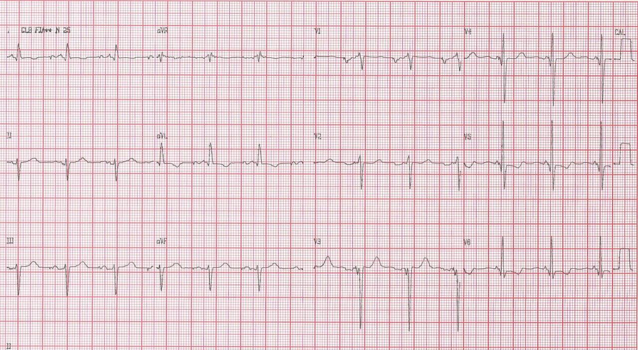 Paciente portador de miocardiopatía hipertrófica con CDI implantado que produce múltiples descargas espúreas por detectar episodios de FA originados en probable fibrosis auricular
