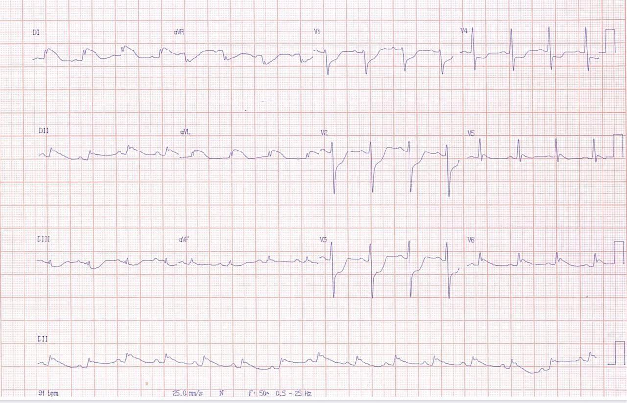 Paciente de 38 años que comienza con hemicranea y disartria agregándose luego dolor precordial y disnea cuyo ECG presenta signos de SCA ínfero lateral y cuya CCG mostró arterias coronarias normales y signos compatibles con síndrome de Takotsubo invertido o variante basal