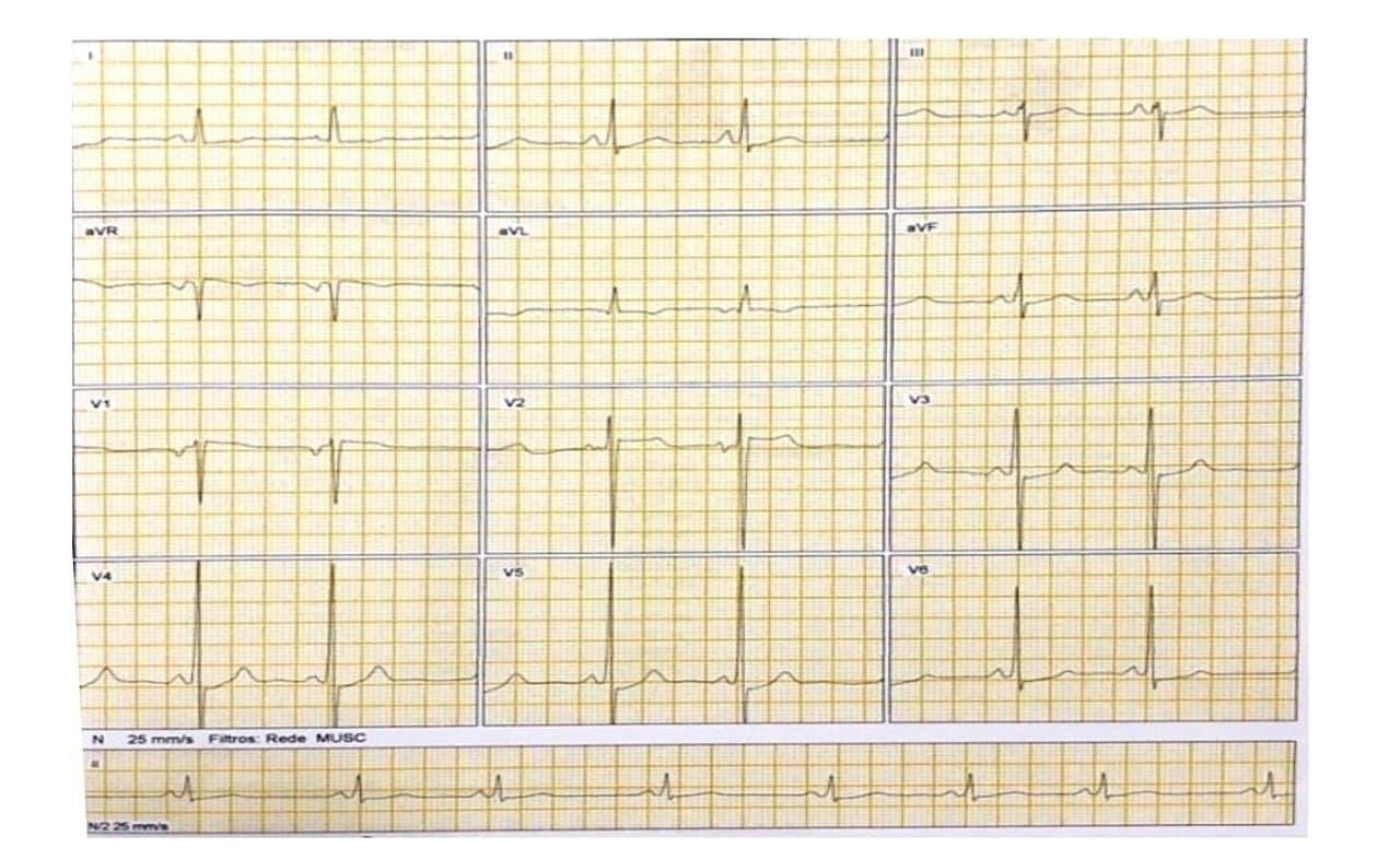 Mujer de 22 años con frecuentes episodios sincopales en quién se constata miocardiopatía hipertrófica y presencia de PR corto sin onda delta, con sospecha de enfermedad de Fabry