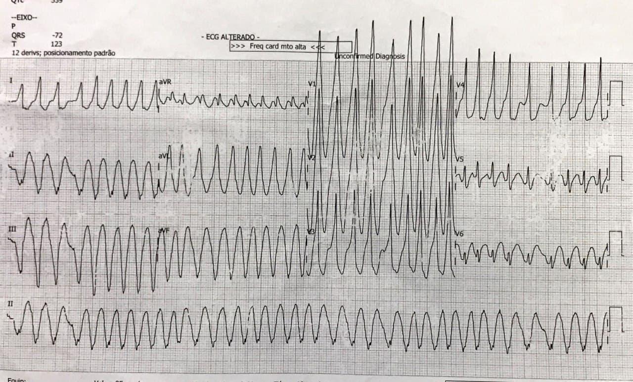 Paciente de 36 años que presenta FA preexcitada requiriendo CVE que permite observar una onda delta que simula ser Q en cara inferior