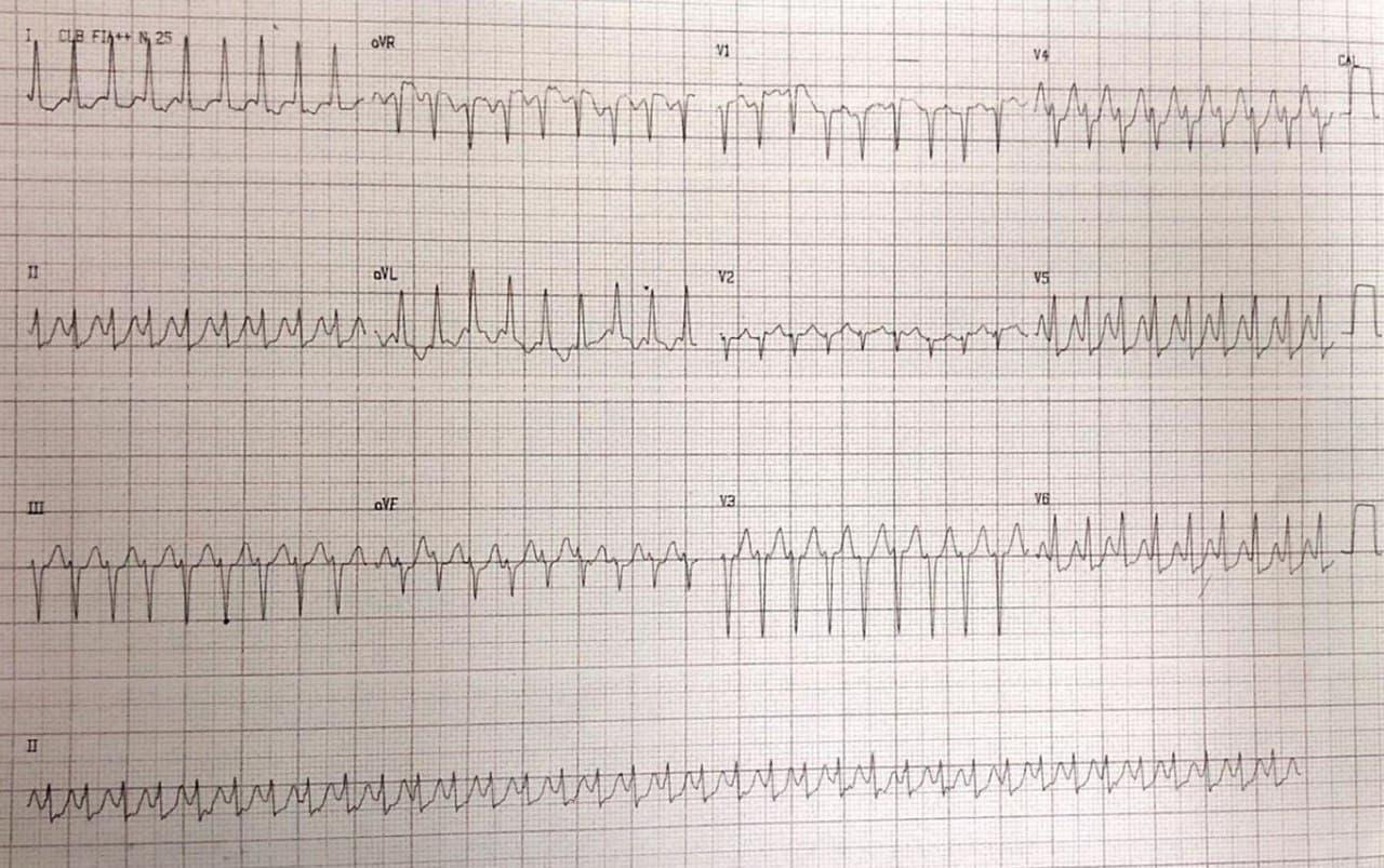 Paciente de 67 años con palpitaciones que presenta taquicardia de QRS angosto en el que la adenosina permite visualizar mínima preexcitación