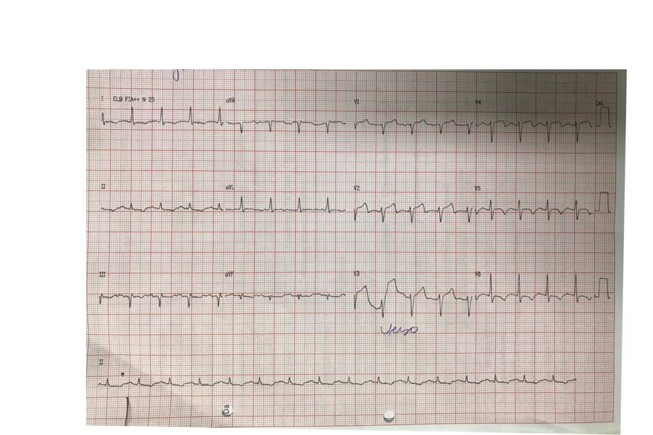 Paciente sometido a terapia trombolítica prehospitalaria con tenecteplase con marcada mejoría del angor al cabo de una hora constatándose en la CCG suboclusión de la DA